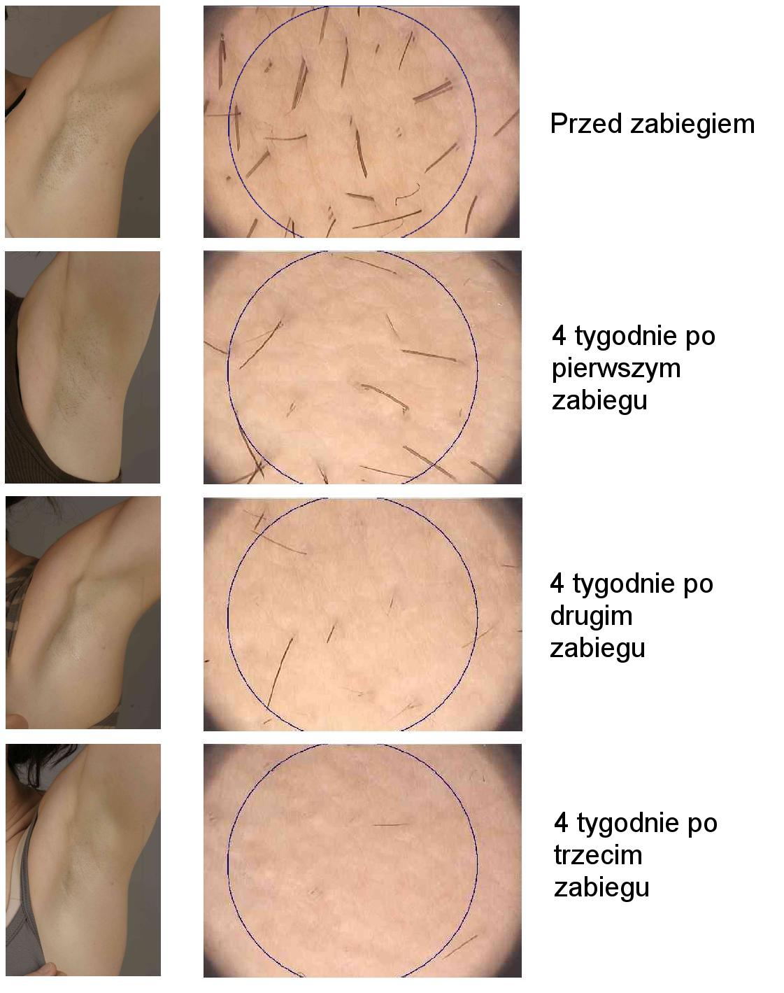 LEDA EPI efekty depilacji laserowej w esteticon.pl