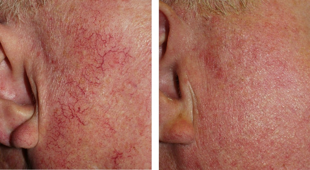 dermatologia estetyczna szczecin