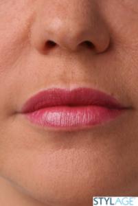 powiększanie ust po zabiegu