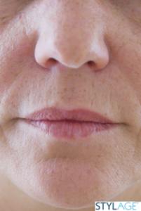 powiększanie ust przed zabiegiem