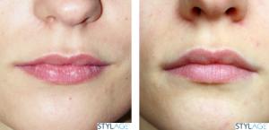 powiększanie, modelowanie ust